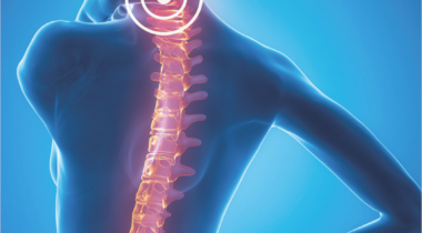Tu dolor de espalda puede esconder algo